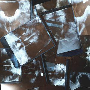 Unverpackte Röntgenbilder