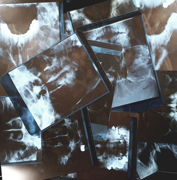 Röntgenbilder unverpackt
